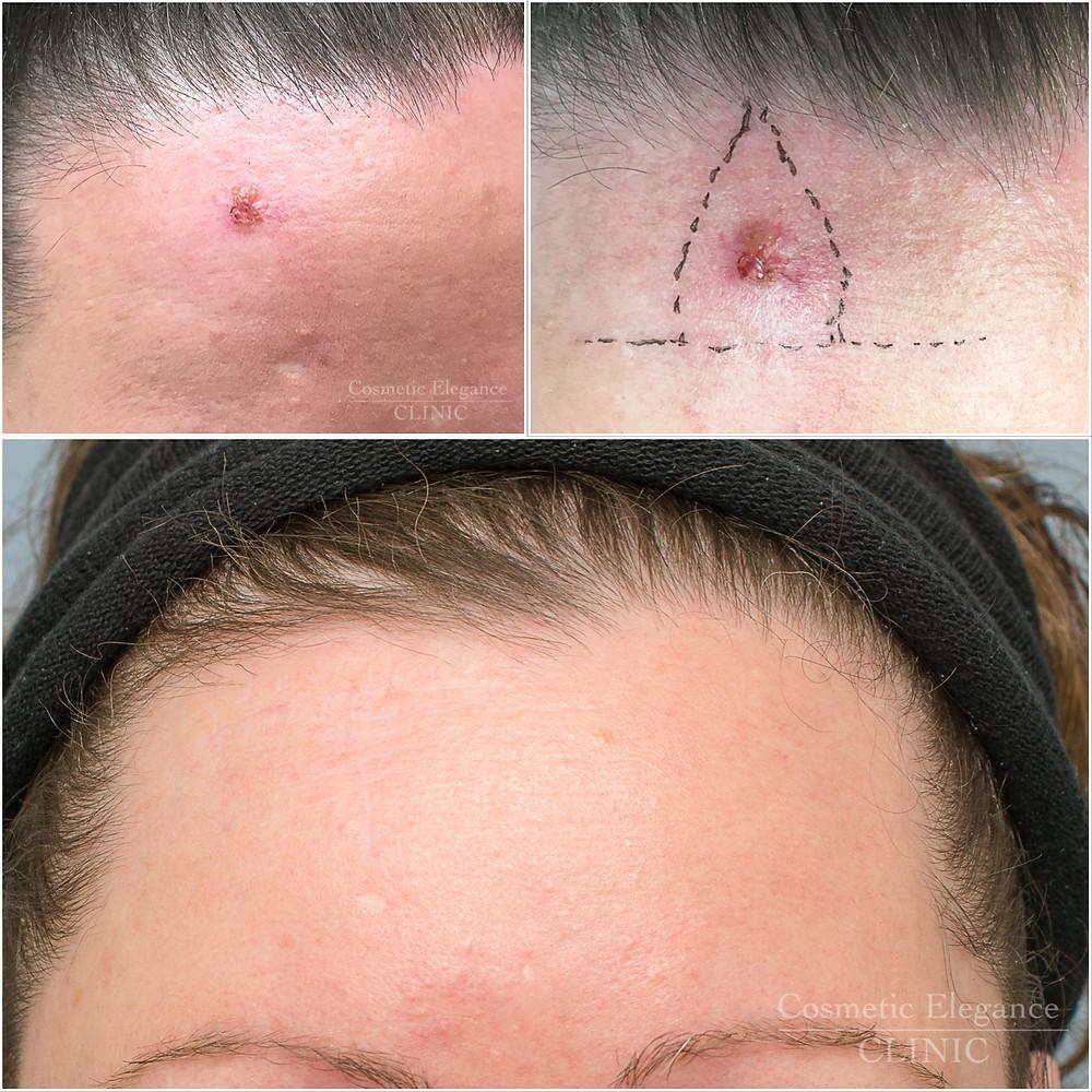 scar mole skin tag wart remove Toowoomba