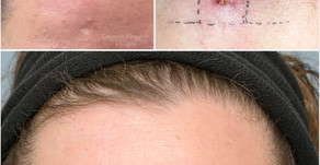 Spot the scar! Isn't Dr Eddie's excision work good?