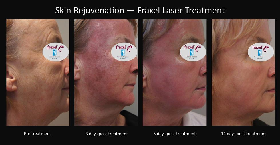 Skin rejuvenation Fraxel Toowoomba