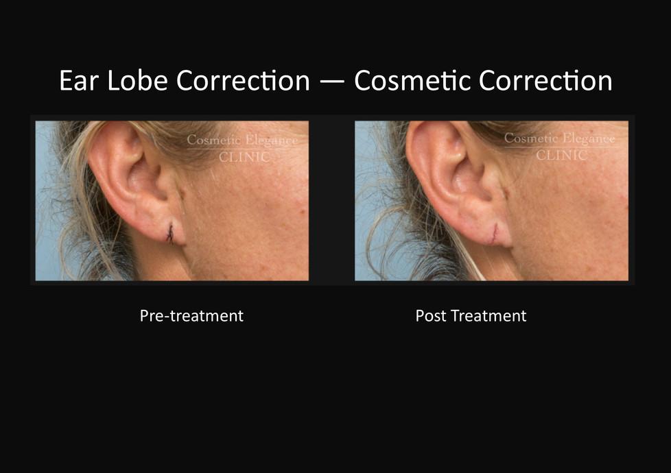 Cosmetic Ear Lobe Correction Toowoomba