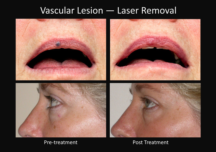 Laser Vascular Lesion Removal Toowoomba