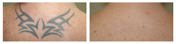 tattoo removal Toowoomba