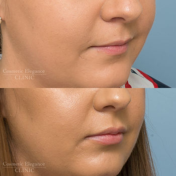 lip fillers Toowoomba lip enhancement