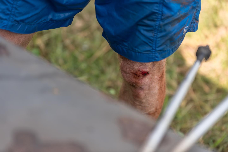 The hardships of running a 50km trail run!