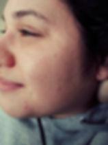 jessica acne face.jpg
