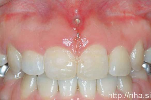 minivis cắm ở mặt trước xương hàm trên của một bệnh nhân niềng răng mặt trong.