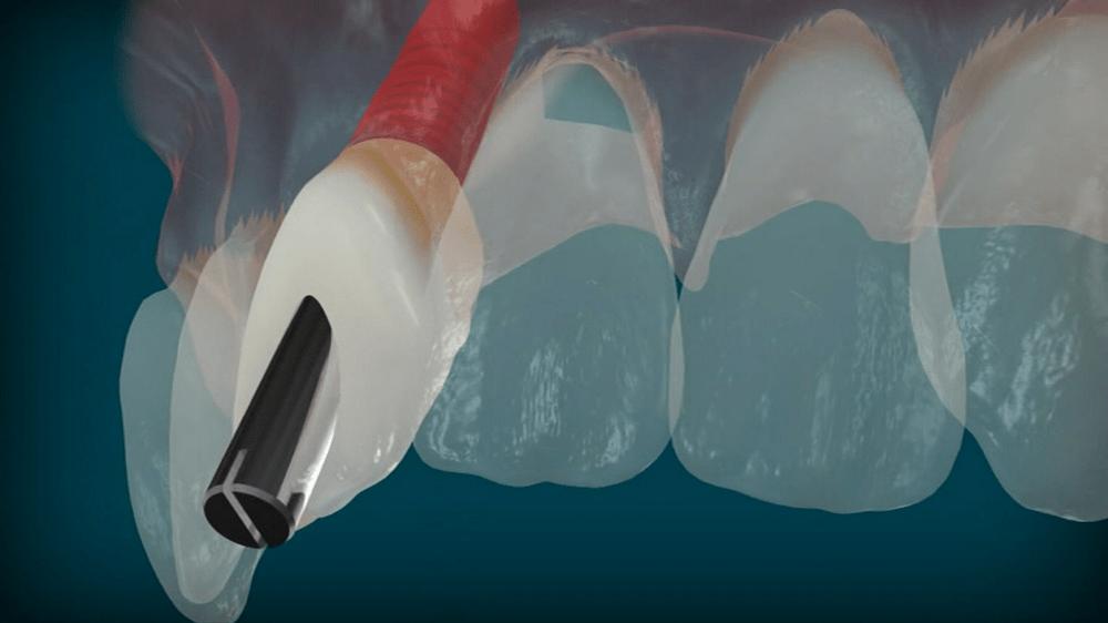 5-loi-khuyen-implant