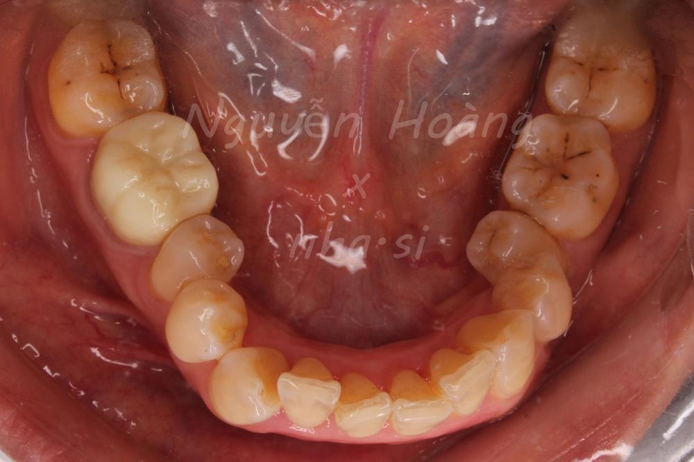 Dựng trục răng hàm nhỏ trong phục hình răng sứ thẩm mỹ