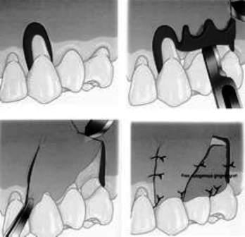 Thiết  đồ đứng dọc qua vùng quanh răng