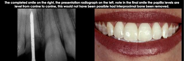 Điều trị xâm phạm khoảng sinh học ở mặt bên một răng trước đơn lẻ