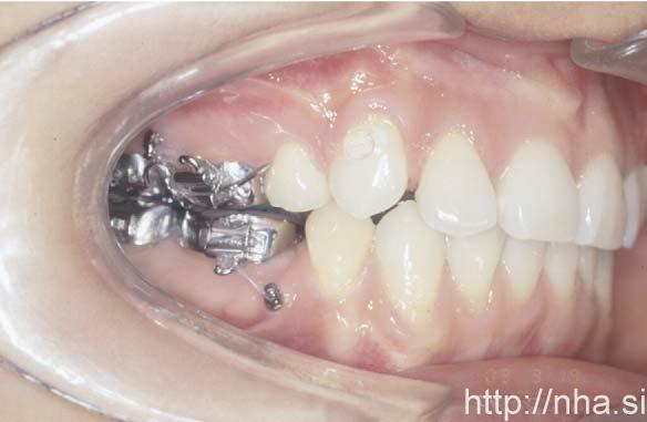 Minivis cắm ở mặt ngoài hàm trên và hàm dưới ở một bệnh nhân niềng răng mặt trong