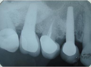 Tiêu xương trên phim X-quang