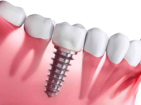 Un implant dura tota la vida?