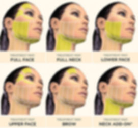 Ultherapy Treatment Areas Cropped.jpg