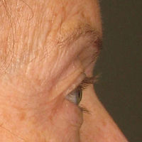 ULTHERAPY FOR BROWS SAGGING WRINKLES IAE
