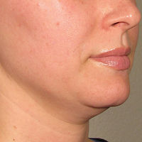 ULTHERAPY FOR CHIN AGING SAGGING WRINKLE