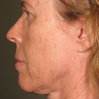 ULTHERAPY FOR FACE AGING SAGGING WRINKLE