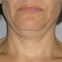ULTHERAPY FOR NECK AGING SAGGING WRINKLE