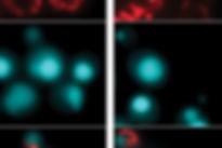 microbiologie-grand est-gis-nature-pathogènes et stratégies de lutte