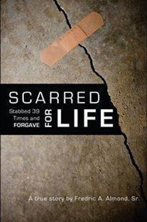 Scarred For Life: Stabbed 39 Times & Forgave