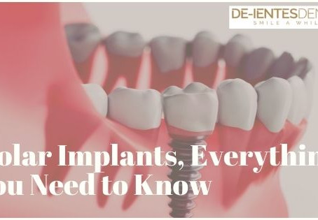 Molar Implants, Everything You Need to Know