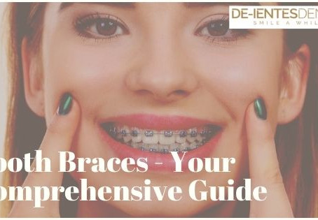 Tooth Braces - Your Comprehensive Guide