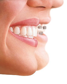 pictures of Invisalign on teeth