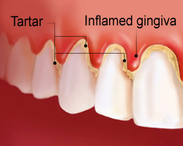 tartar and inflamed gums