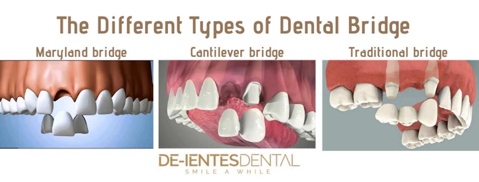 dental bridges picture