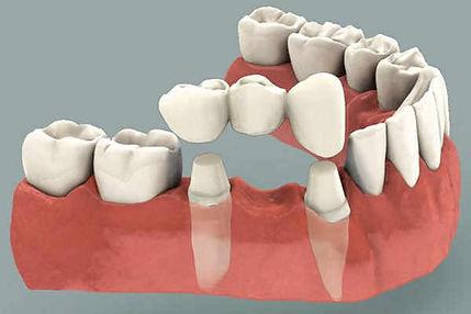 single dental bidge
