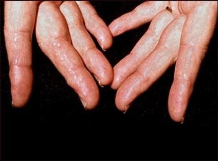 ¿Qué es la Amiloidosos?