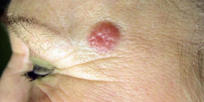 En 20% aumentaron los casos de cáncer de piel en Colombia en 2020