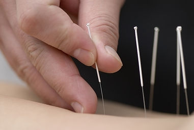 Acupuncture for Pain, Anxiety, Fertility, Digestive and Immune Disorders