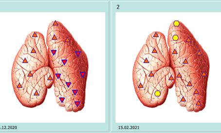 Thymus et viktig organ