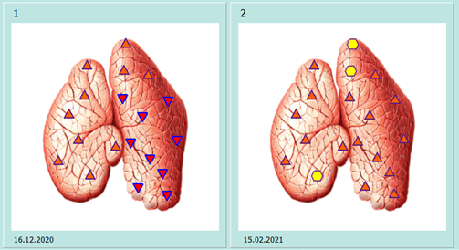 Thymus før og etter.png