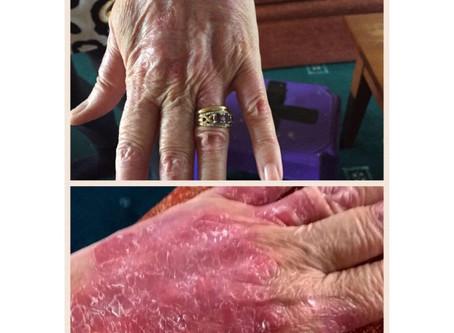 Lider du av psoriasis eller en lignende hudtilstand?