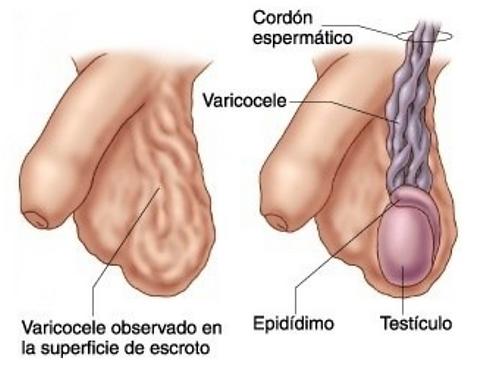 urologo-en-durango.png