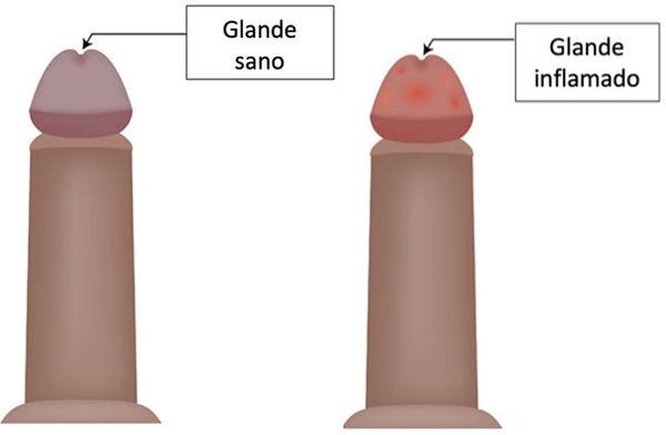 urologo-en-durango.jpg