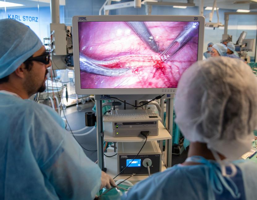 Cirugia laparoscopica 3D.jpg