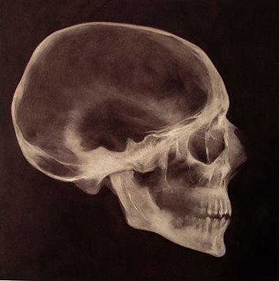 xray skull_opt