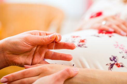 Midwife setting pregnant woman acupunctu