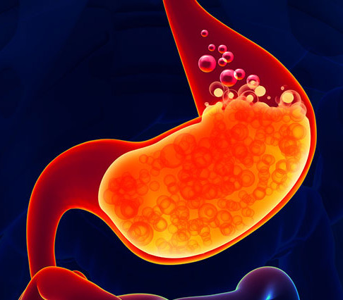 Finding Your Root Cause: Do you have low stomach acid?