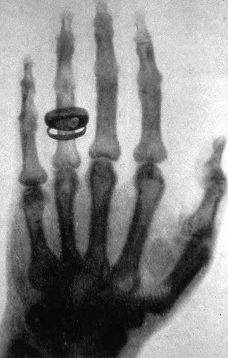 倫琴夫人的手骨與戒指