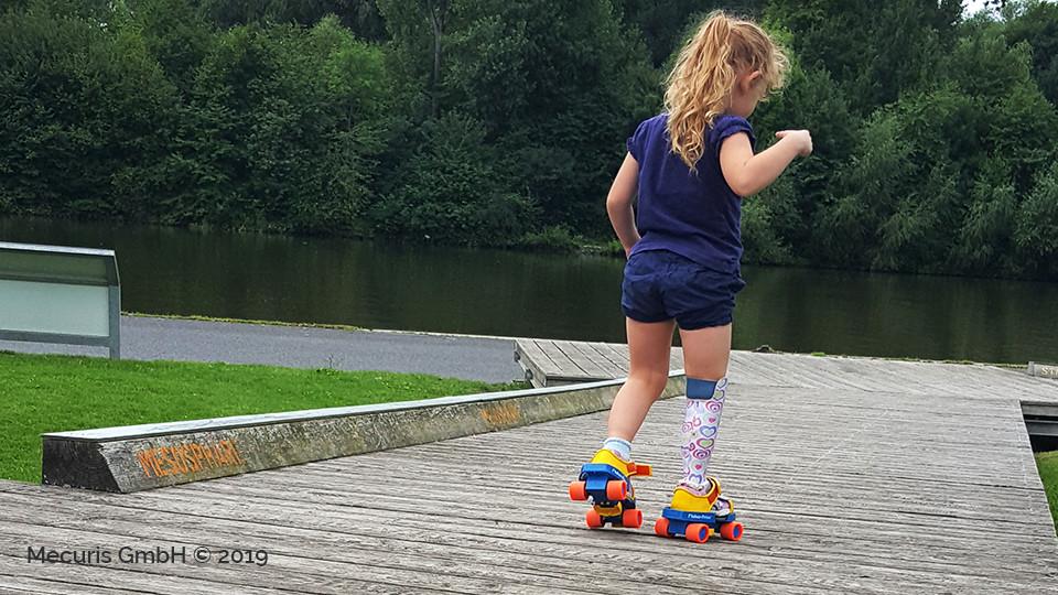3d printed pediatric prosthetic foot - Mecuris FirStep