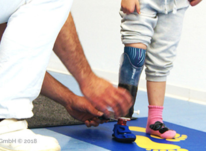 #littleHeroes - Do you want your child to try out our 3D-printed individualized pediatric foot?