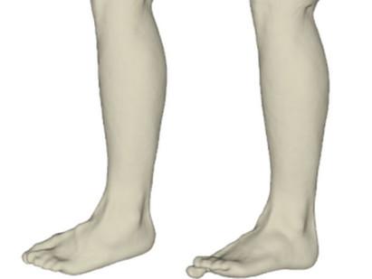 Die Alternative zum Gipsabdruck in der Orthopädietechnik