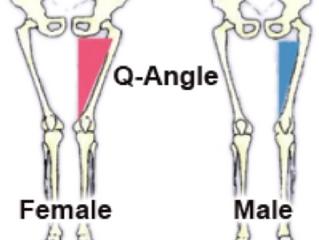 The Female Athlete Injury Epidemic