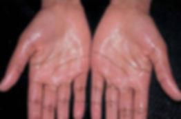 ABCD Melanoma