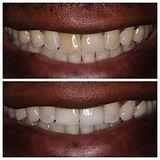 Teeth Whitening.jfif