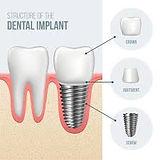 implant.jfif